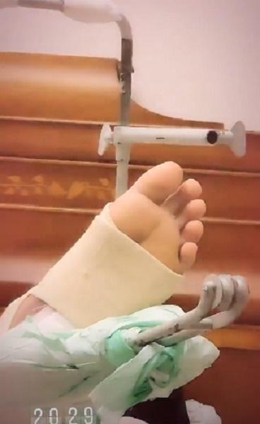 Перед шоу в Питере Билан получил двойной перелом ноги