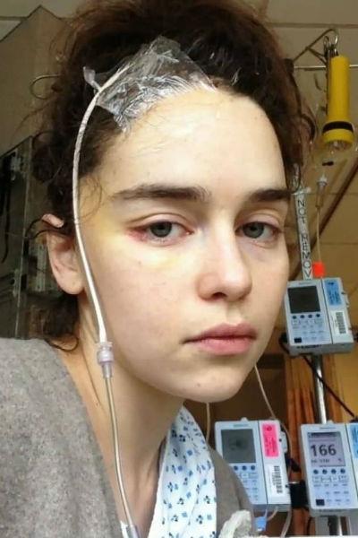 Эмилия Кларк перенесла операцию на мозге
