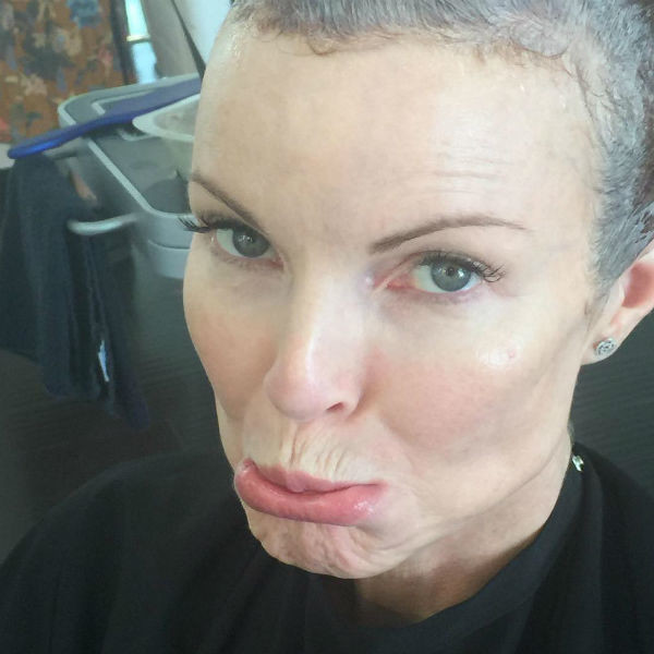 Марсия Кросс преодолела рак