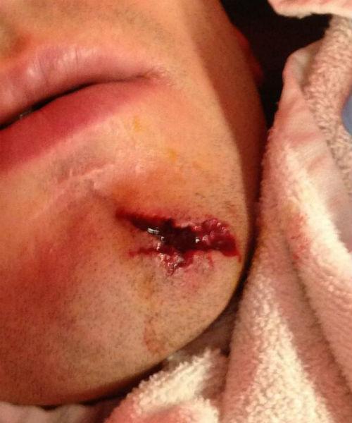 Овечкину не привыкать получать травмы, ведь это хоккей