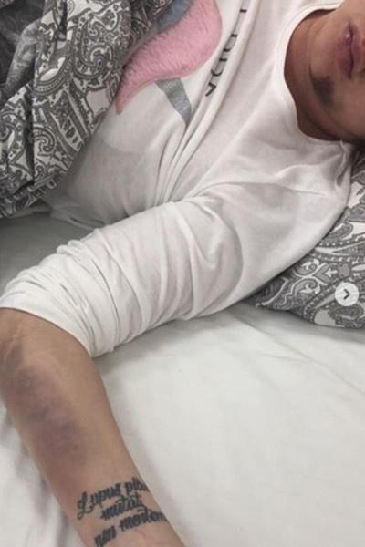 МакSим пострадала в результате аварии