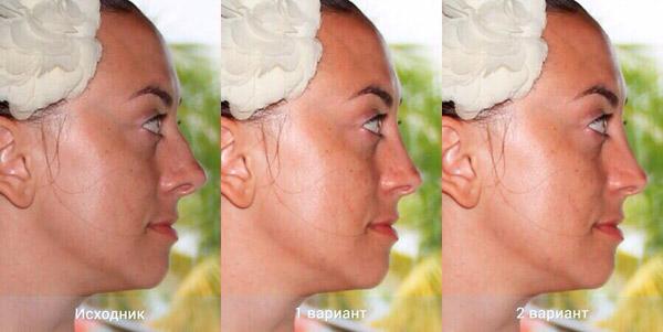 Таким нос Натальи станет после вмешательства хирургов