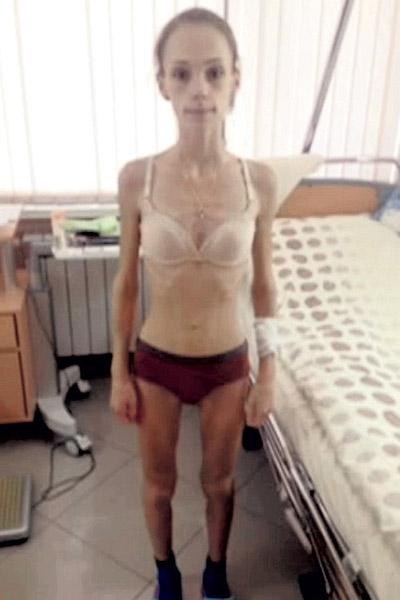 Юля пока не может есть сама, ее кормят через капельницу. За последние две недели в больнице фигуристка набрала 2 кг