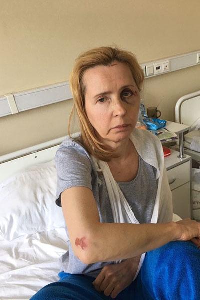 После жестокого избиения Людмила Мосейко несколько недель провела в больнице