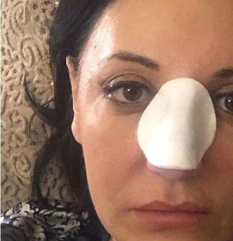 Фатима после операции страдала от головной боли