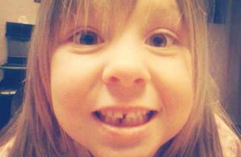 У Лидии выпал нижний зуб