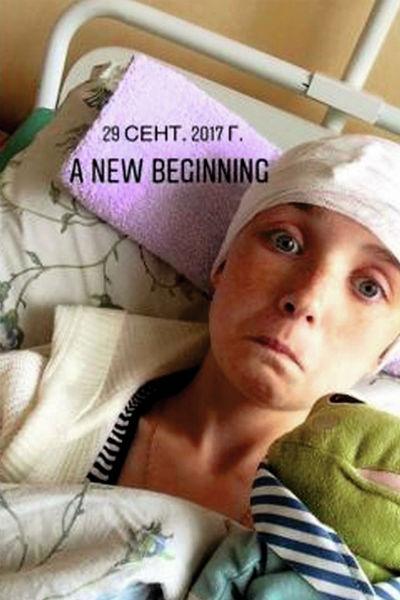 Это фото после операции наша героиня отправила своему будущему агенту