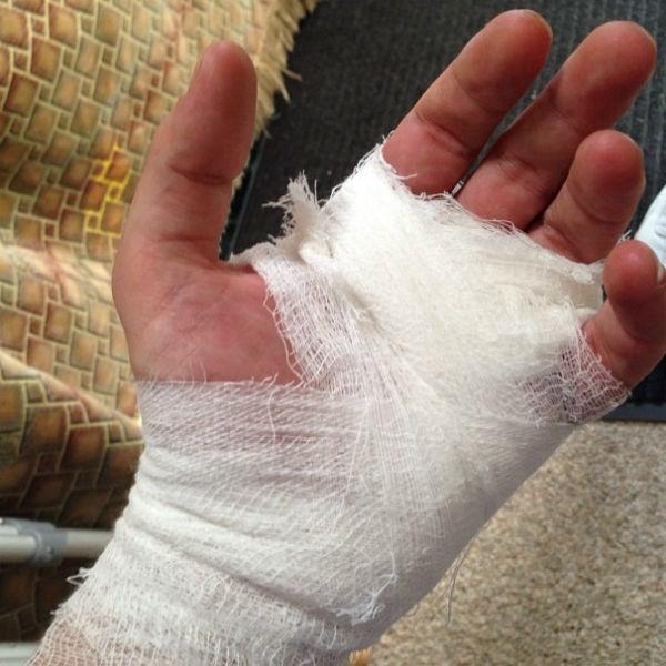 «Остальное тело не буду показывать... Травмировал руку на съемках фильма «Подарок», - подписал Галустян опубликованный снимок