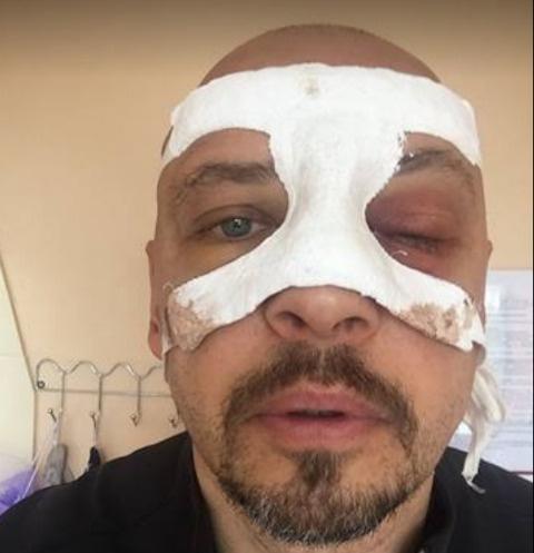 Солист группы «Песняры» пострадал вДТП слосём