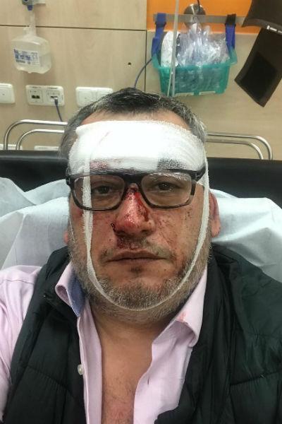 Вадим Глускер упал на эскалаторе