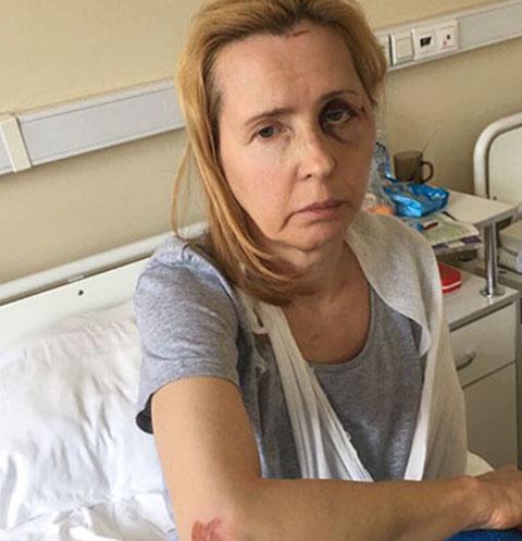 Бывший щеф-редактор программы «Взгляд» Людмила Мосейко восстанавливается после жестокого избиения