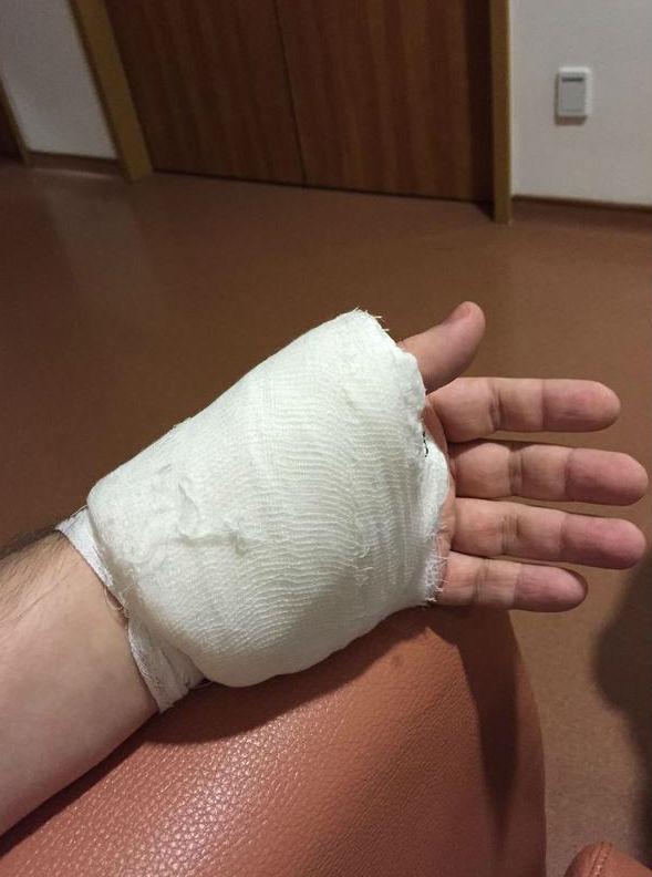 Шоумен получил достаточно серьезную травму