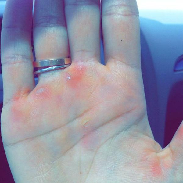 Спортсменка показала в своем микроблоге руки с мозолями от шеста