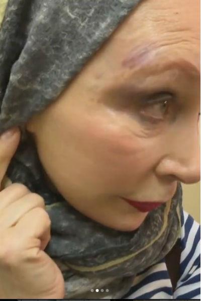 Татьяна Васильева показала гематомы на голове