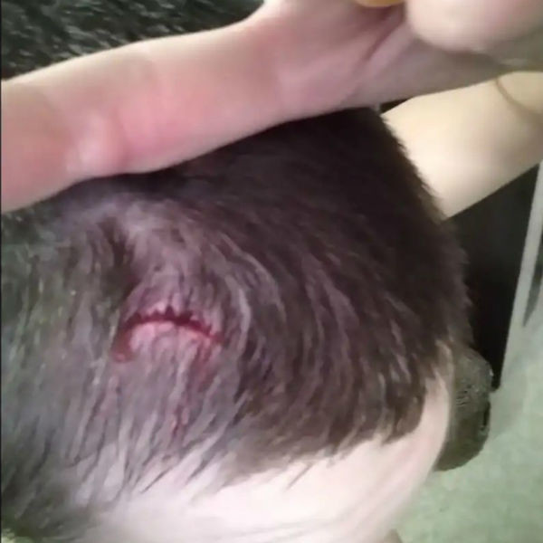 Травма Алексея