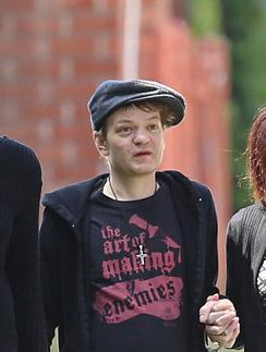 Дерик Уибли после выхода из больницы, где он провел месяц
