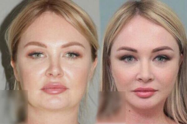 Лицо Дарьи Пынзарь до и после операции