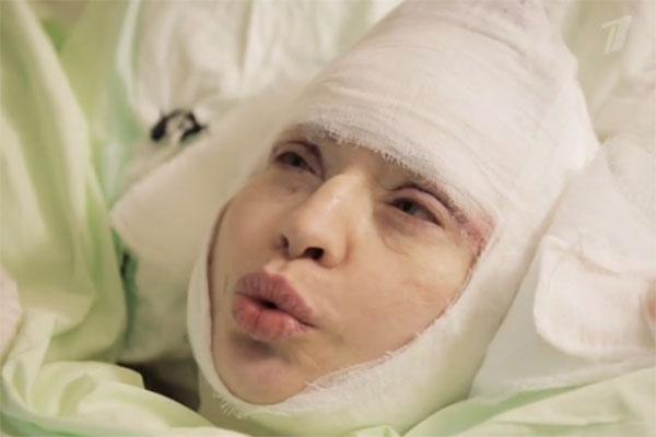Так певица выглядела сразу после пластической операции