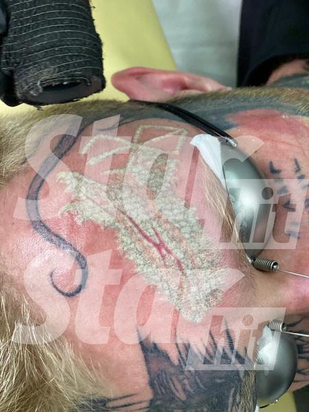 Денису удалили две татуировки за одну процедуру