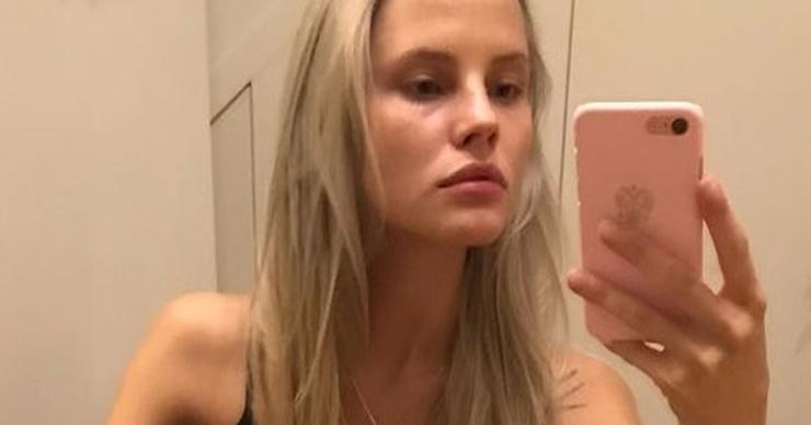Невеста Ильи Глинникова довела себя до анорексии