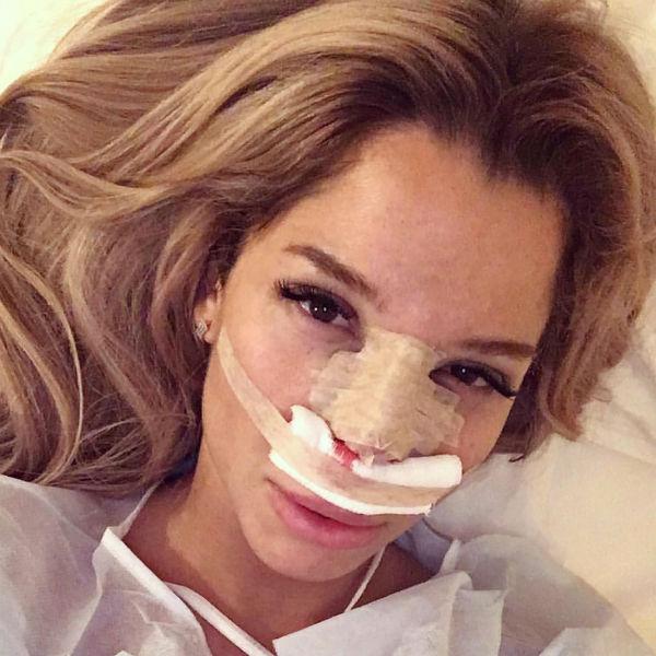 Екатерина Колисниченко перенесла вторую пластическую операцию за последние полгода