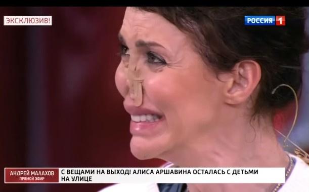 Так сейчас выглядит Алиса Аршавина, которая борется с аутоиммунным заболеванием