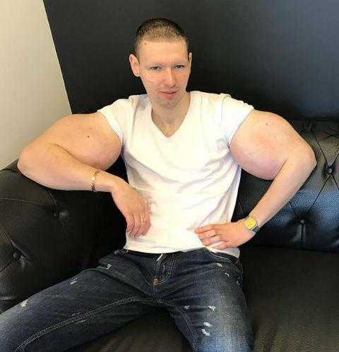 Жена Павла Мамаева ищет пластических хирургов для Кирилла Терешина