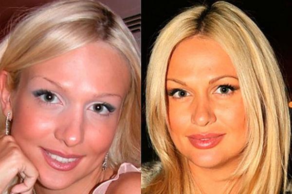 Стиль: Боня подтянула лицо, а Романец несколько раз переделывала нос – фото №9
