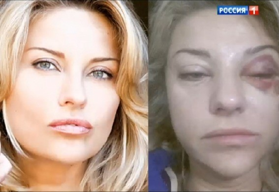 В свое время Башаров поднимал руку на Екатерину Архарову