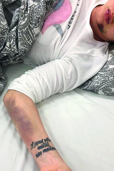 При аварии Марина сильно ударилась подбородком
