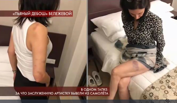 О скандальном инциденте Лидии Леонидовне напоминают синяки по всему телу