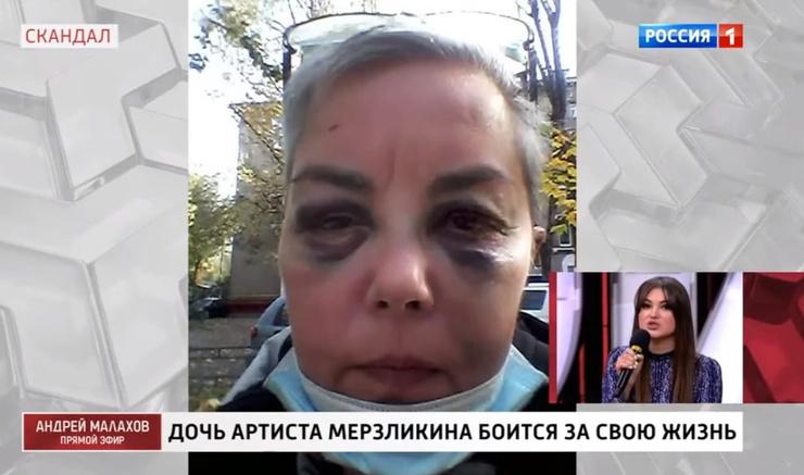 Оксану жестоко избил бездомный