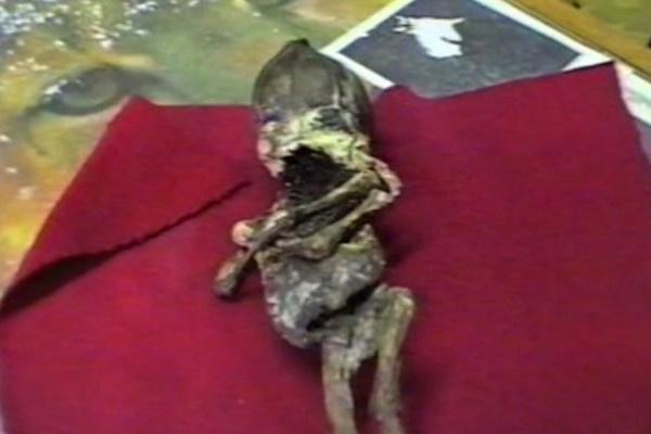 Сохранились лишь фотографии и видео кыштымского карлика