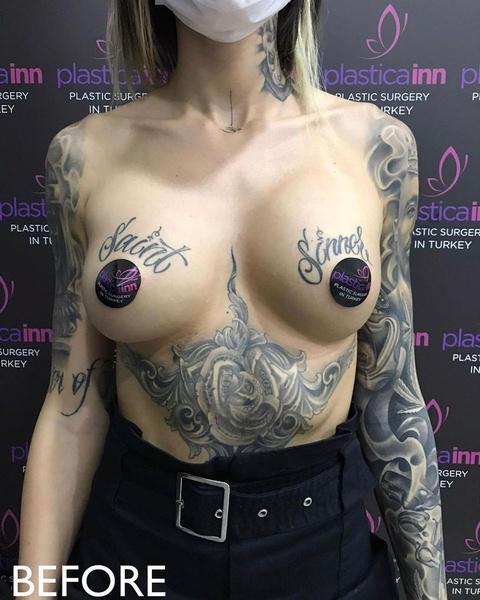 Так грудь Марины выглядела до операции