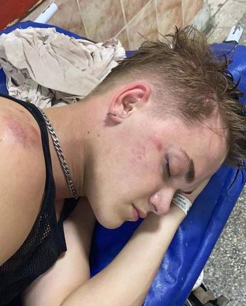 Появилось видео избиения танцора Нади Дорофеевой, который впал в кому