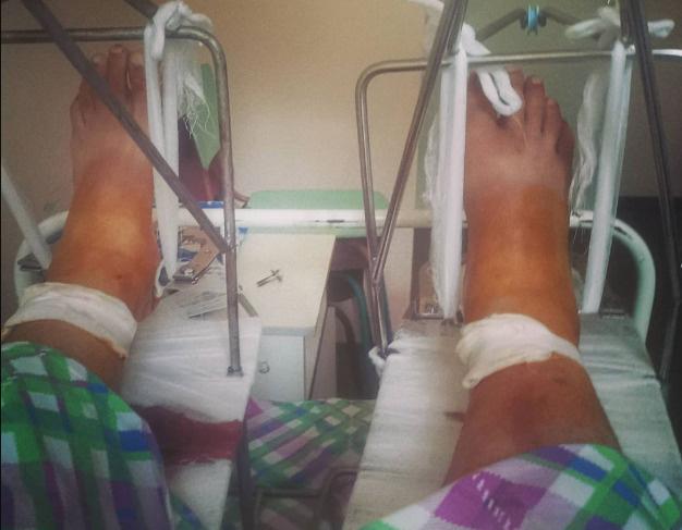 В начале июля Михаил изрядно напугал подписчиков фото из больницы