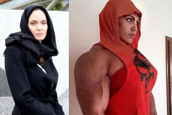 Как и Анджелина Джоли, Наталия поставила себе импланты груди
