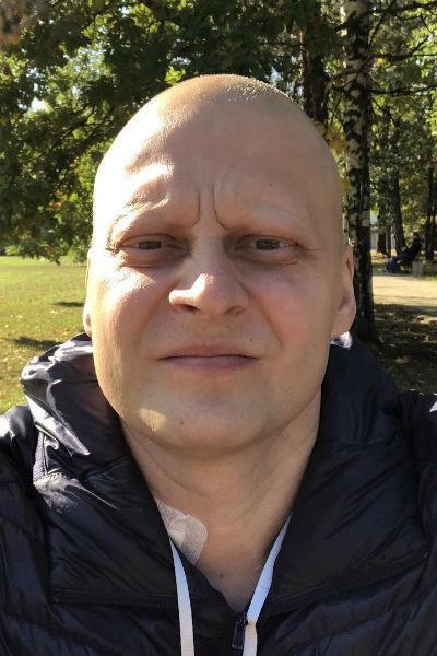 После курса химиотерапии Андрей стал выглядеть так