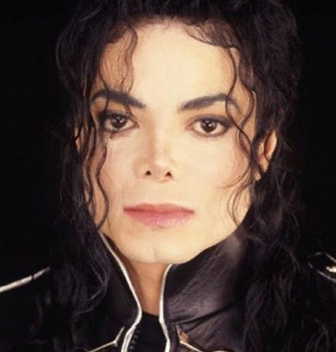 Многие не верили, что Майкл Джексон болен витилиго