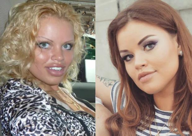 С годами Олеся сменила не только цвет волос, но и значительно уменьшила губы