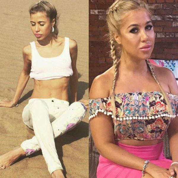 Дана Борисова призналась, что у нее анорексия — www.wday.ru | 600x600