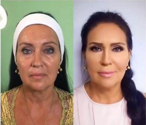 Татьяна Африкантова до и после процедур