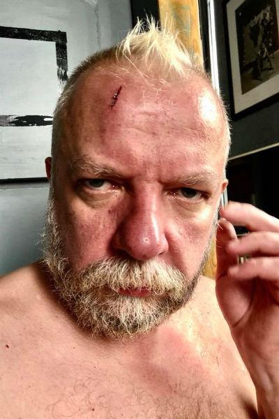 Пахома избили в Красноярском крае