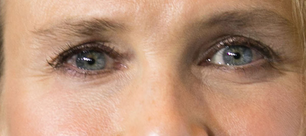 Мимически морщинки вокруг глаз сохранились, но глаза стали шире, а взгляд - глубже