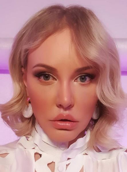 Маша Малиновская показала результат свежей блефаропластики