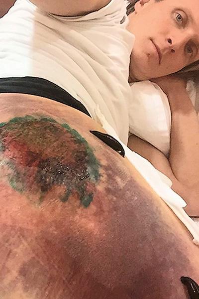 Конькобежец несколько дней провел в больнице из-за сильного повреждения ноги