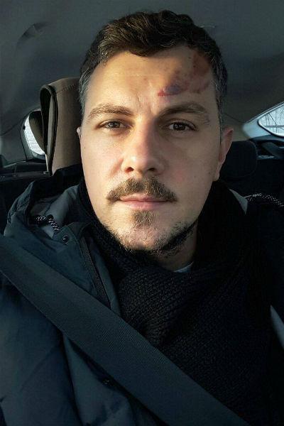 Алексей рад, что он отделался несерьезными травмами