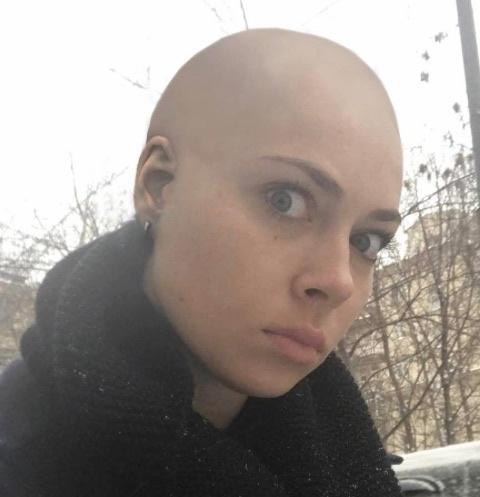 Настасья Самбурская шокировала своим видом поклонников