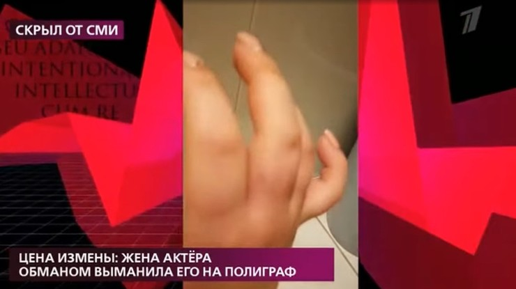Никиткина показала покалеченные пальцы