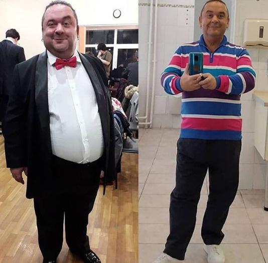Юморист резко похудел после операции на желудок